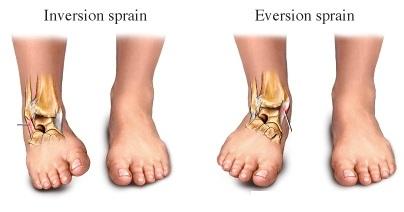 ankle-sprain-ligs