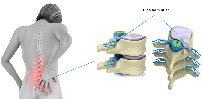 disc_herniation